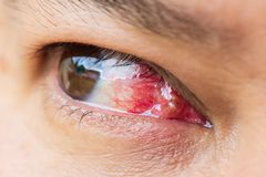 Close up of the pterygium during eye examination. Royalty Free Stock Images