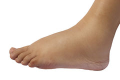 Close up of the puffy foot of a 35 weeks pregnant woman Stock Image