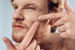 Close up. Red haired young man squeeze out pimple royalty free stock photography