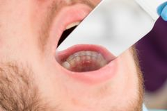 Close-up retainer on man`s lower jaw. orthodontics, photography with a mirror royalty free stock photography