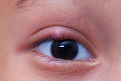 Close up right upper eye lid abscess. Stye or hordeolum Royalty Free Stock Photo