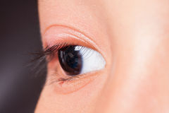 Close up right upper eye lid abscess. Stye or hordeolum Royalty Free Stock Images