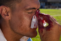 Close up of rugby player with injured nose Stock Photos