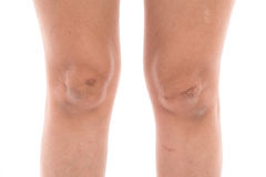 Close up scars on woman legs Stock Image