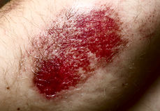Close-up of a scratched wound on elbow. Very hard light and contrast Stock Photos