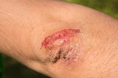 Close-up of a scratched wound on elbow Royalty Free Stock Image