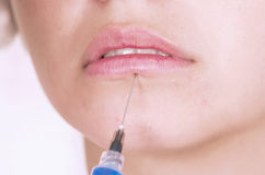 Close up shot of lips getting botox injection Royalty Free Stock Image