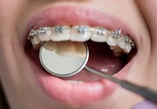 Close-up shot of teeth with braces. Smiling female patient with metal brackets at the dental office Royalty Free Stock Photo