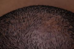 Close-Up Shot of Top of Head with Hair Loss Due to Fungus and Scaly Scalp. Close Up Shot of Top of Head with Hair Loss Due to Fungus and Scaly Scalp stock photos