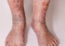 Close-up of skin with varicose veins. On senior male leg. Concept of dry skin Stock Photography