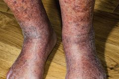 Close-up of skin with varicose veins. On senior male leg. Concept of dry skin, old senior people, varicose veins royalty free stock photo