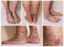 Close-up of skin with varicose veins. The collage of skin with varicose veins on senior male legs. Concept of dry skin Stock Photo