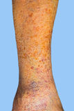 Close-up of skin with varicose veins. On senior male leg. Concept of dry skin Royalty Free Stock Image