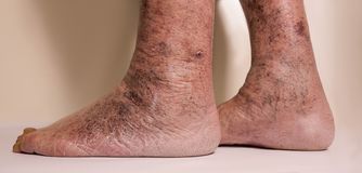 Close-up of skin with varicose veins. On senior male leg. Concept of dry skin Royalty Free Stock Images
