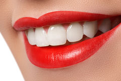 Close-up of smile with white healthy teeth Stock Photos