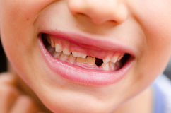 Close up smiling child mouth missing milk tooth Stock Photos