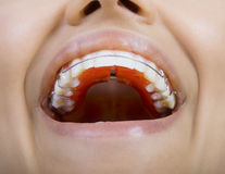 Close Up Of Smiling Teeth with retainer. Close Up Of Teeth with retainer Royalty Free Stock Photos