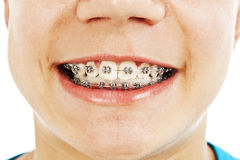 Close-up of a smiling young teenager with braces Stock Photo