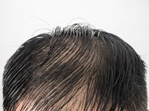 Close up Some hairstyles of many man serious hair loss problem for hair loss concept or health care shampoo product on white royalty free stock image