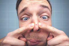 Funny portrait of a man with a pimple on the nose. Close-up of a squinting mans face. He is using two fingers to get rid of a red pimple on top of his nose stock photography