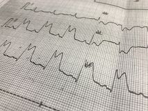 ST elevation on ECG paper. Close up ST elevation in leadI ll,lll on ECG paper Royalty Free Stock Images