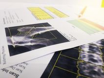 Close up stethoscope ,knee jerk and spine models Put on a bone Density report.too soft and blurry image stock photo
