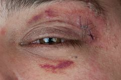 Close-up of a stitched wound. Next to a man's eye Stock Images