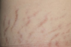 Close up stretch marks Royalty Free Stock Image