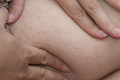 Close up stretch marks Royalty Free Stock Photography