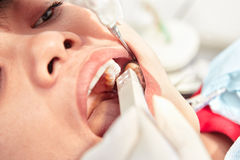 Close up teeth examination Royalty Free Stock Photo