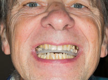 Close up of teeth guard in senior mouth Stock Image