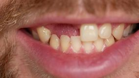 Close-up of teeth. A man shows his denture on two teeth. There are not enough two teeth, instead of them a plastic
