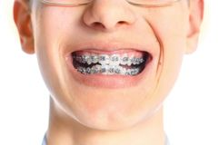 Close-up of tooth with braces. Royalty Free Stock Image