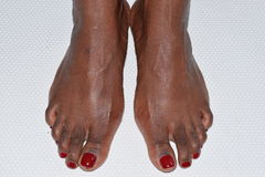 Close-up of two feet of an black African woman with red nail polish Stock Photo