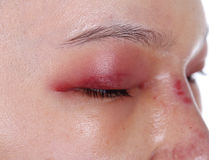 Close-up of upper eye lid swell after nose job Royalty Free Stock Photo
