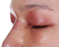 Close-up of upper eye lid swell after nose job Stock Image