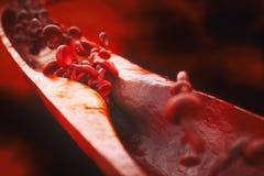 Close-up van atherosclerose het 3D teruggeven stock illustratie