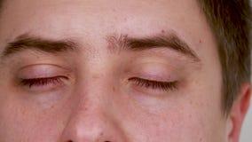 Close-up van blauwe mannelijke rode ogen Bindvliesontsteking, oogmoeheid, ongepaste ooghygiëne - gevolgen in de vorm van rode haa stock video