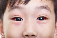Close-up van chronische bindvliesontsteking met een rode iris stock afbeeldingen