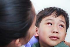Close-up van chronische bindvliesontsteking met een rode iris stock foto's