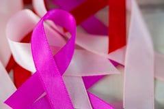 Close-up van de linten van de Kankervoorlichting Royalty-vrije Stock Afbeelding