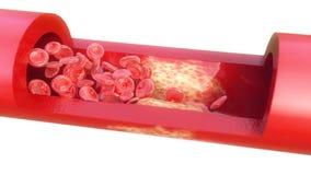 Close-up van een atherosclerose - het 3D teruggeven royalty-vrije illustratie
