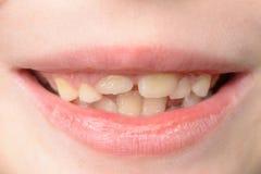 Close-up van een kleine jongen met het gebogen tanden glimlachen royalty-vrije stock foto