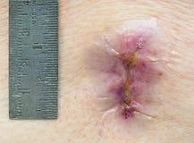 Close-up van een Lumbale Insnijding en een Heerser die van Lamimenectomy het tonen Royalty-vrije Stock Afbeelding