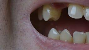 Close-up van een mens die zijn mond openen en de afwezigheid van sommige tanden tonen stock videobeelden
