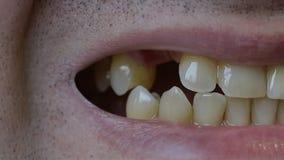 Close-up van een mens die zijn mond openen en de afwezigheid van sommige tanden tonen stock footage