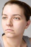 Close-up van een pleister op vrouwelijke neus Royalty-vrije Stock Afbeelding