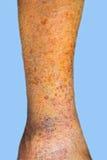 Close-up van huid met spataders Royalty-vrije Stock Afbeelding