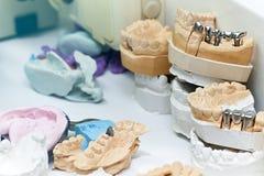 Close-up van kunstmatige kaken in het laboratorium van een tandkliniek stock fotografie