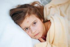 Close-up van leuk droevig meisje in bed Varicellavirus of de uitbarsting van de Waterpokkenbel op kind royalty-vrije stock foto
